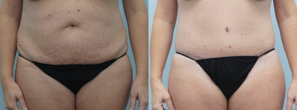 Tummy Tuck Gallery - Patient 49150093 - Image 1