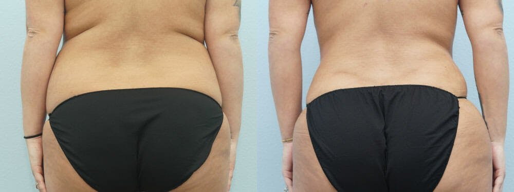 Tummy Tuck Gallery - Patient 49150762 - Image 2