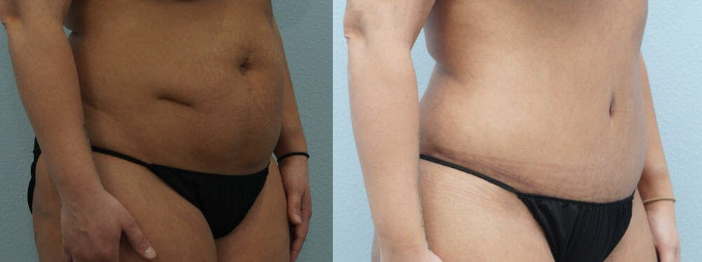 Tummy Tuck Gallery - Patient 49150762 - Image 5