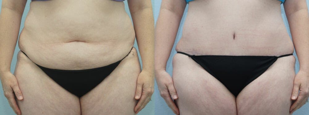 Tummy Tuck Gallery - Patient 49150765 - Image 1
