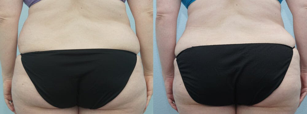 Tummy Tuck Gallery - Patient 49150765 - Image 2