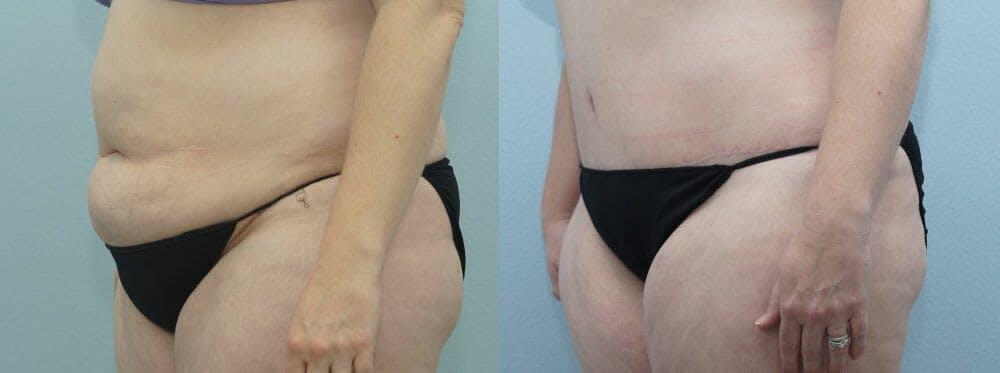 Tummy Tuck Gallery - Patient 49150765 - Image 3