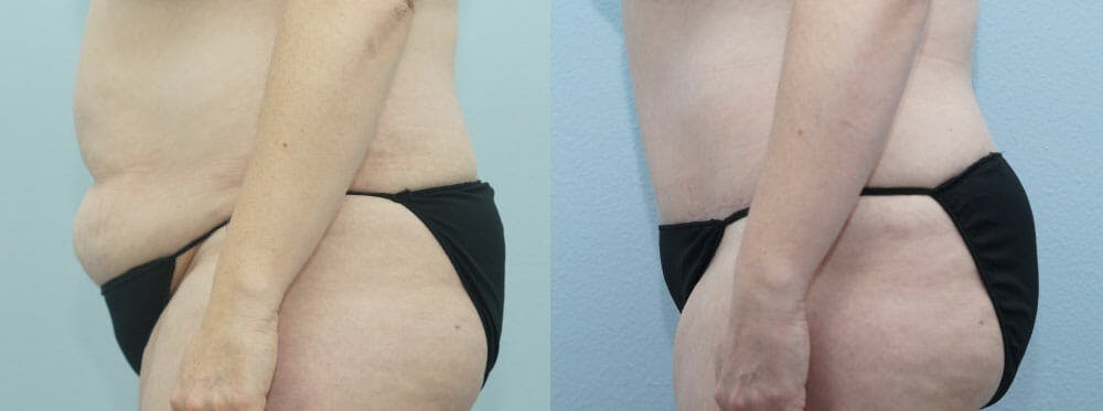 Tummy Tuck Gallery - Patient 49150765 - Image 4