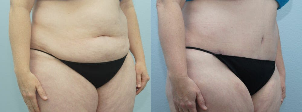 Tummy Tuck Gallery - Patient 49150765 - Image 5