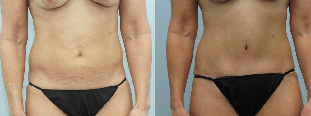 Tummy Tuck Gallery - Patient 49150766 - Image 1