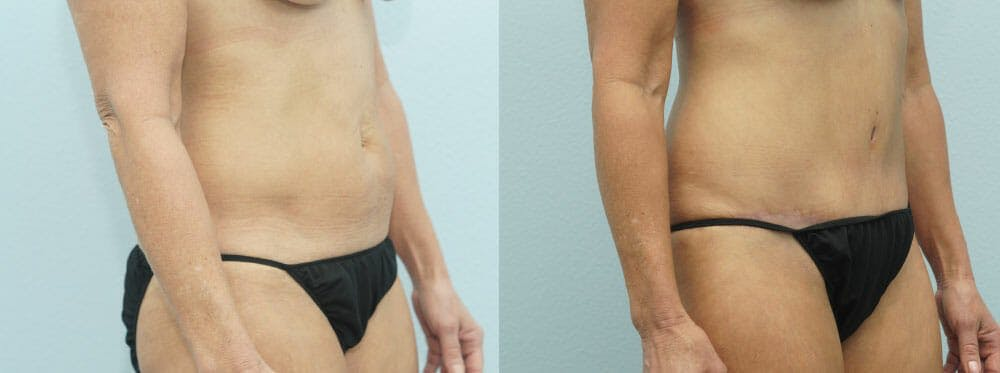 Tummy Tuck Gallery - Patient 49150766 - Image 2
