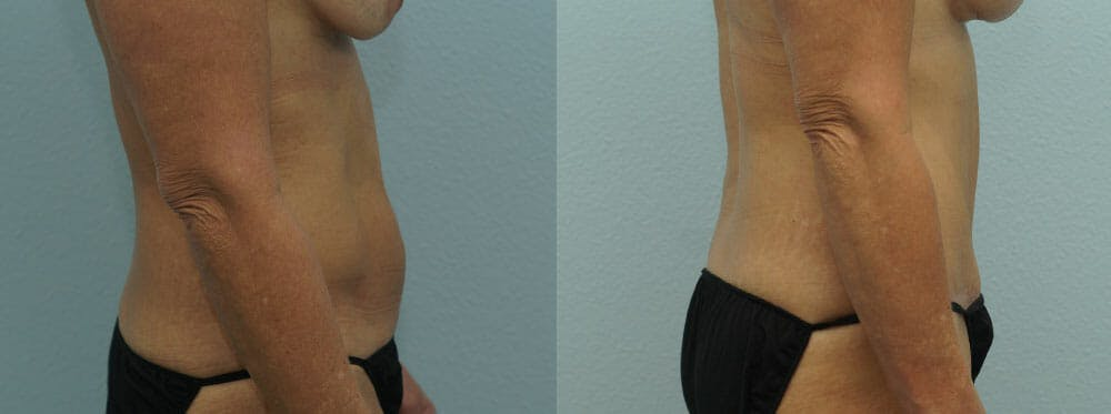 Tummy Tuck Gallery - Patient 49150766 - Image 3