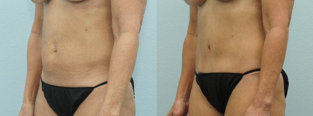 Tummy Tuck Gallery - Patient 49150766 - Image 4