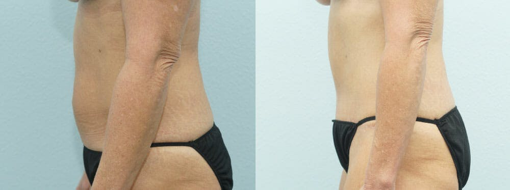 Tummy Tuck Gallery - Patient 49150766 - Image 5