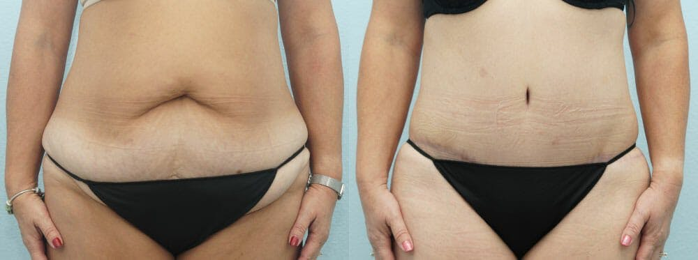 Tummy Tuck Gallery - Patient 49150771 - Image 1