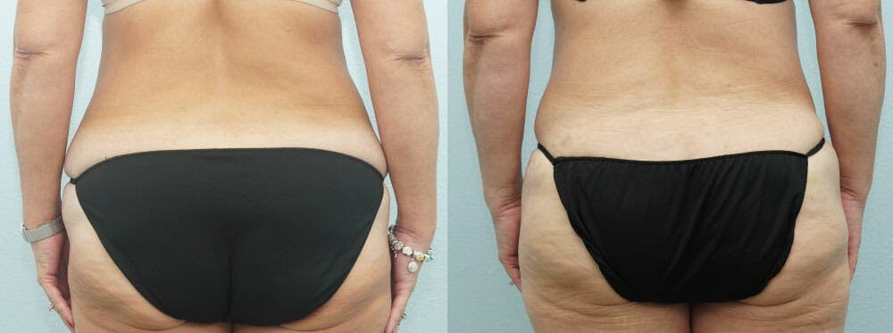 Tummy Tuck Gallery - Patient 49150771 - Image 2