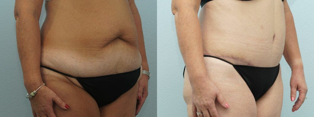 Tummy Tuck Gallery - Patient 49150771 - Image 3