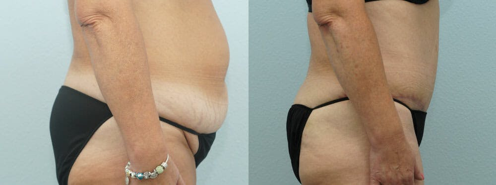 Tummy Tuck Gallery - Patient 49150771 - Image 4