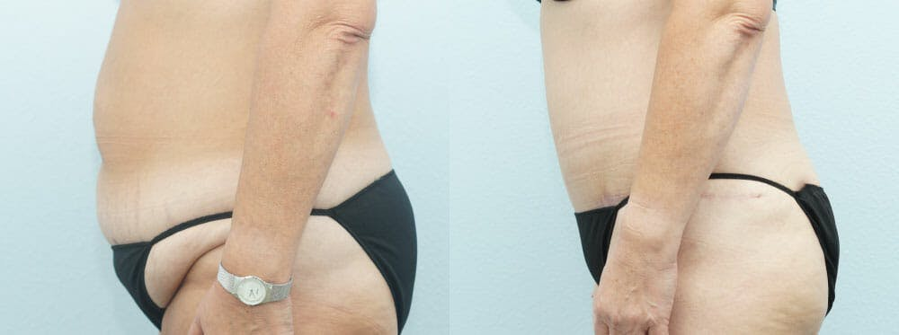 Tummy Tuck Gallery - Patient 49150771 - Image 5