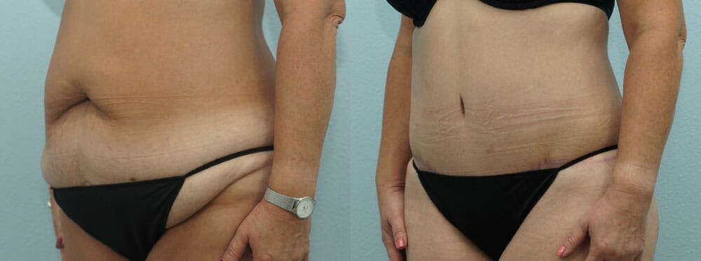 Tummy Tuck Gallery - Patient 49150771 - Image 6