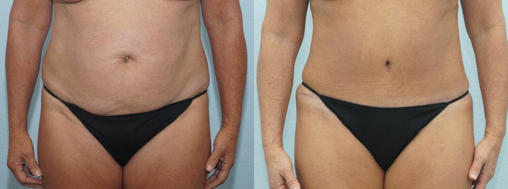 Tummy Tuck Gallery - Patient 49150776 - Image 1