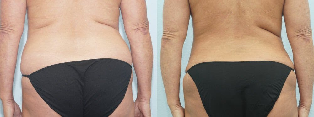 Tummy Tuck Gallery - Patient 49150776 - Image 2