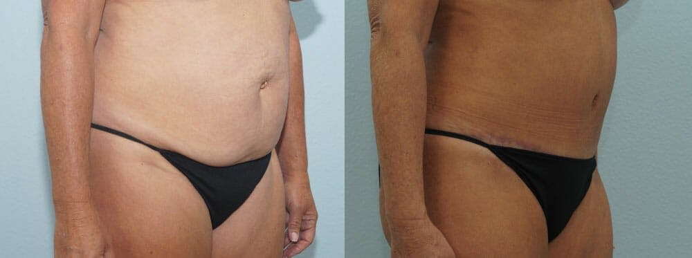 Tummy Tuck Gallery - Patient 49150776 - Image 3