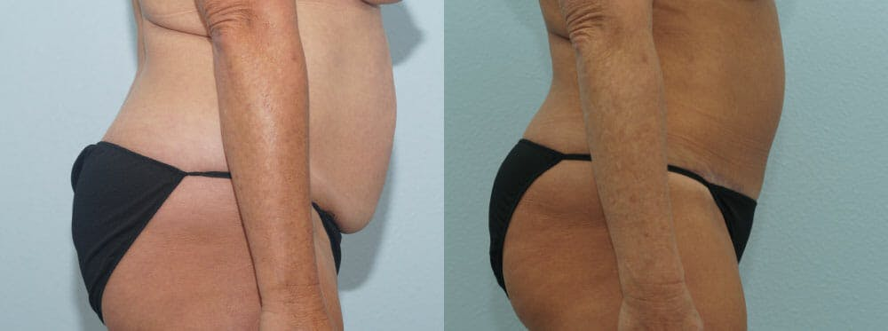 Tummy Tuck Gallery - Patient 49150776 - Image 4