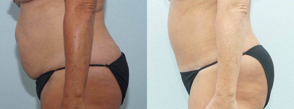 Tummy Tuck Gallery - Patient 49150776 - Image 5