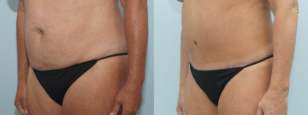 Tummy Tuck Gallery - Patient 49150776 - Image 6