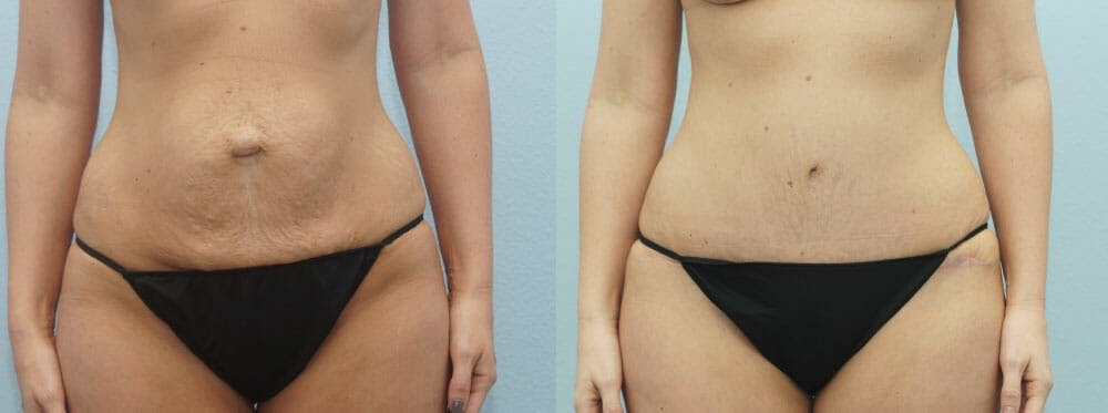 Tummy Tuck Gallery - Patient 49150782 - Image 1