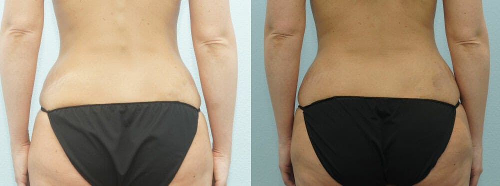 Tummy Tuck Gallery - Patient 49150782 - Image 2