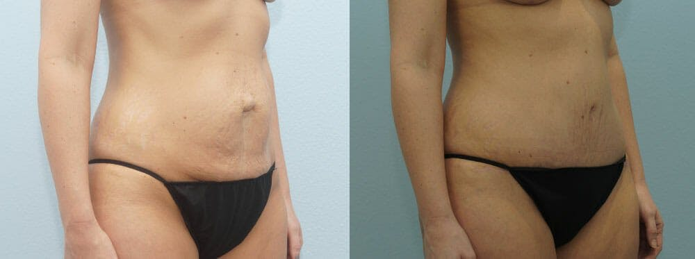 Tummy Tuck Gallery - Patient 49150782 - Image 3