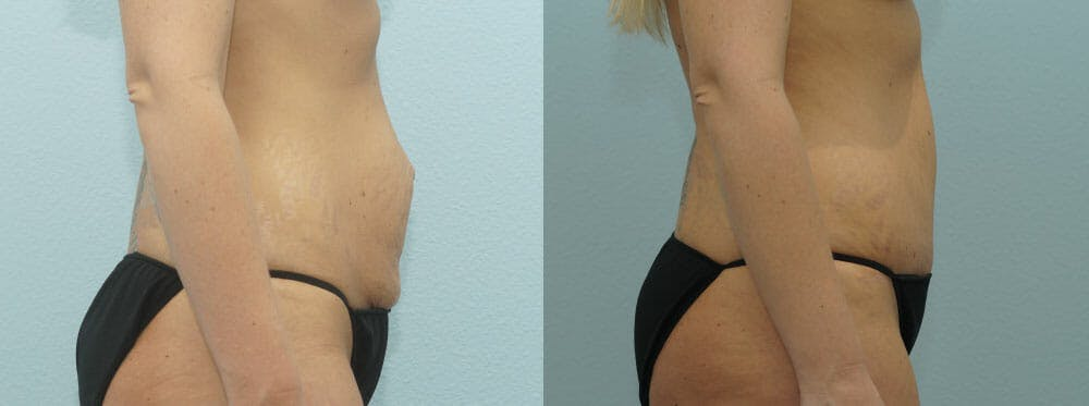 Tummy Tuck Gallery - Patient 49150782 - Image 4