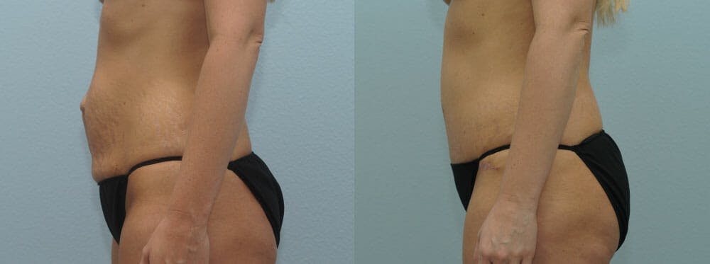 Tummy Tuck Gallery - Patient 49150782 - Image 5