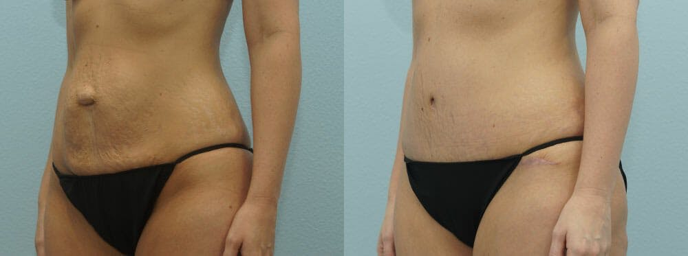 Tummy Tuck Gallery - Patient 49150782 - Image 6