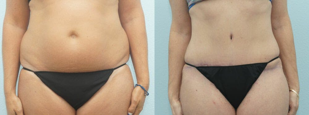 Tummy Tuck Gallery - Patient 49150784 - Image 1