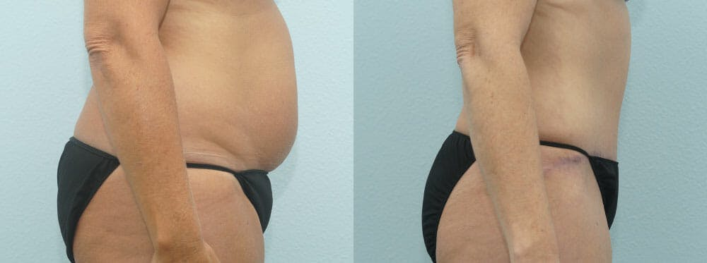 Tummy Tuck Gallery - Patient 49150784 - Image 2
