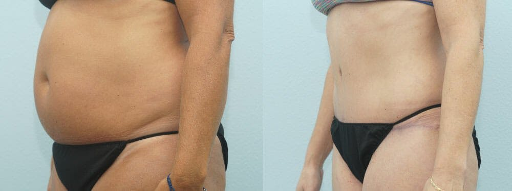 Tummy Tuck Gallery - Patient 49150784 - Image 3