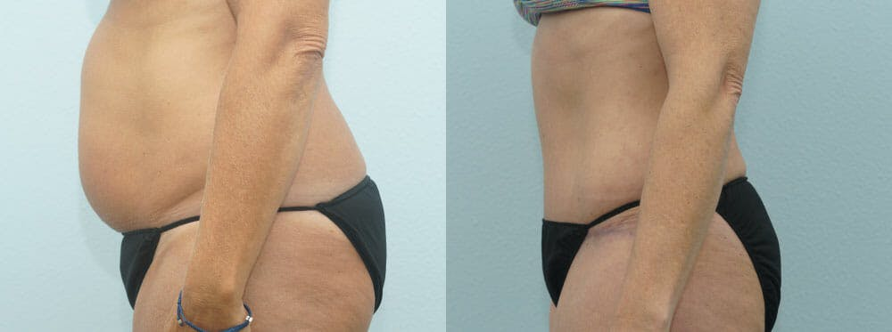 Tummy Tuck Gallery - Patient 49150784 - Image 4