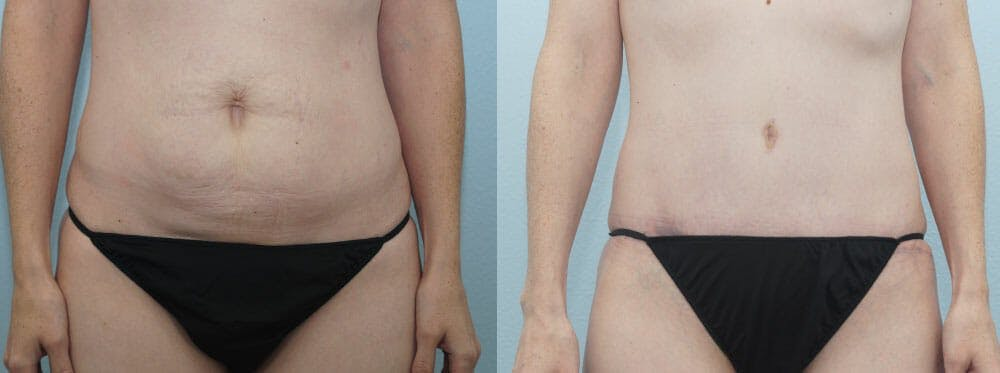Tummy Tuck Gallery - Patient 49150787 - Image 1