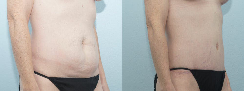 Tummy Tuck Gallery - Patient 49150787 - Image 2