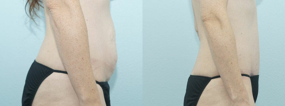 Tummy Tuck Gallery - Patient 49150787 - Image 3