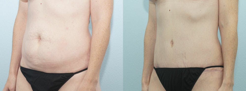 Tummy Tuck Gallery - Patient 49150787 - Image 4