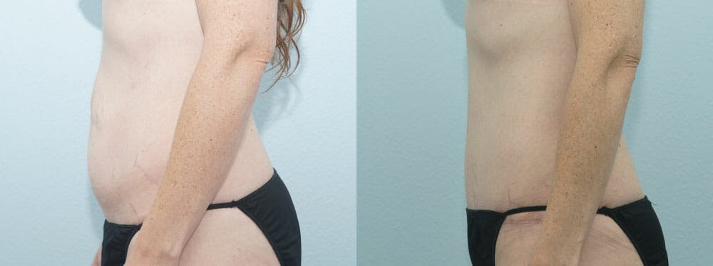 Tummy Tuck Gallery - Patient 49150787 - Image 5