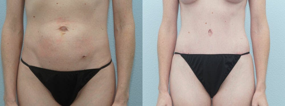 Tummy Tuck Gallery - Patient 49150799 - Image 1