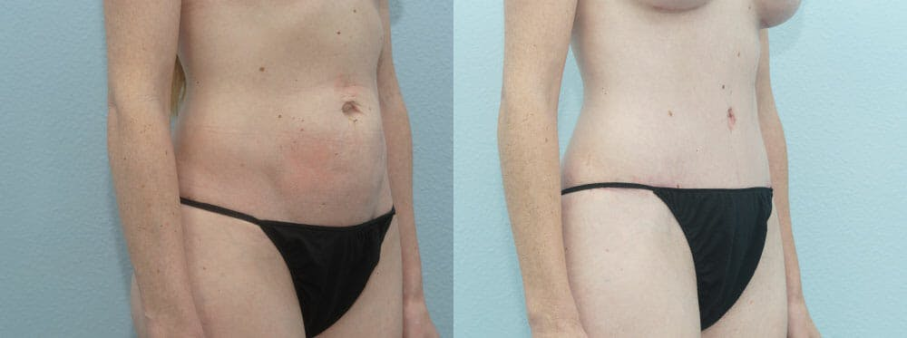 Tummy Tuck Gallery - Patient 49150799 - Image 2