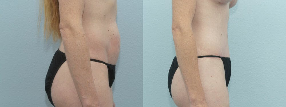 Tummy Tuck Gallery - Patient 49150799 - Image 3
