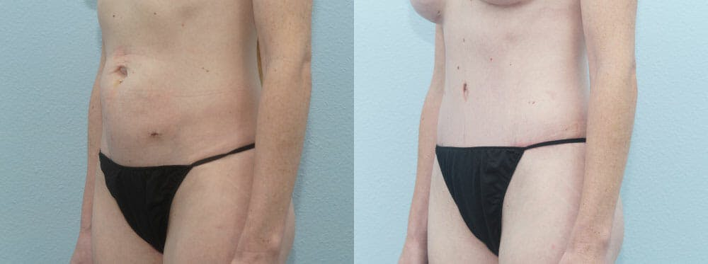 Tummy Tuck Gallery - Patient 49150799 - Image 4