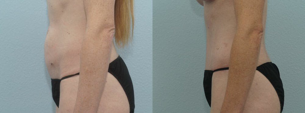 Tummy Tuck Gallery - Patient 49150799 - Image 5