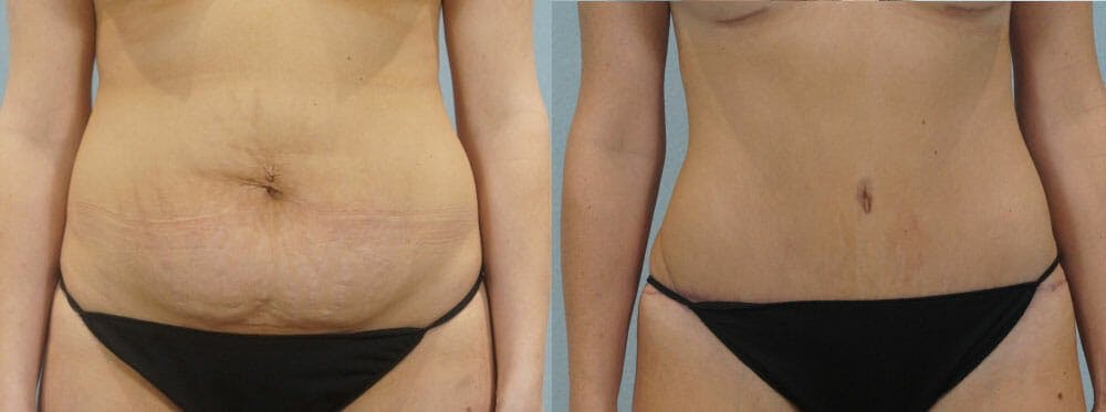 Tummy Tuck Gallery - Patient 49150800 - Image 1