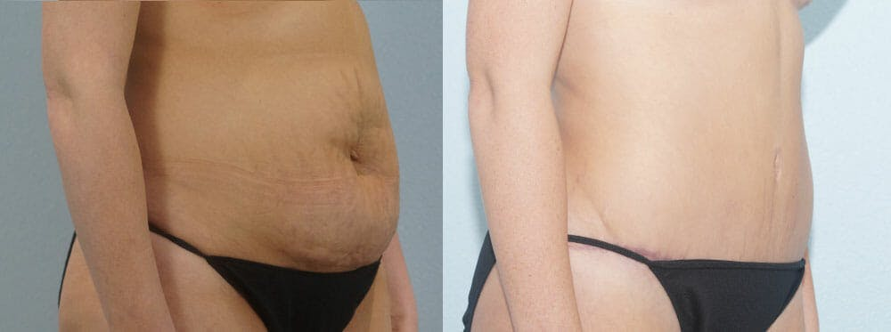 Tummy Tuck Gallery - Patient 49150800 - Image 2