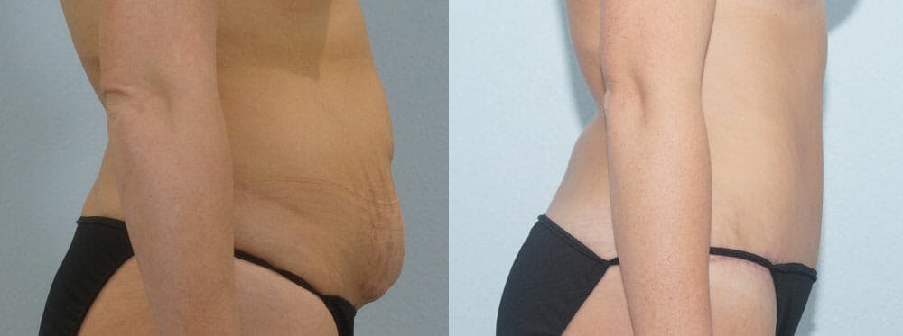 Tummy Tuck Gallery - Patient 49150800 - Image 3