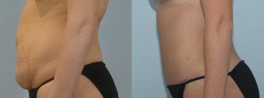 Tummy Tuck Gallery - Patient 49150800 - Image 5