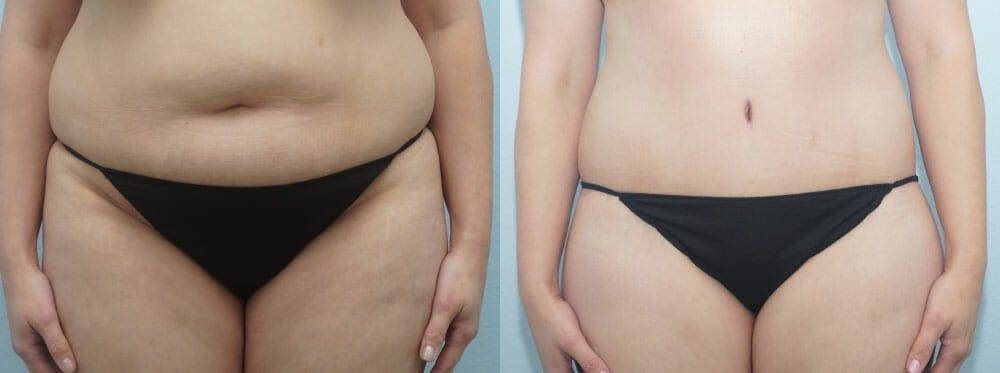 Tummy Tuck Gallery - Patient 49150804 - Image 1
